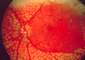 Fundus_photo_showing_scatter_laser_surgery_for_diabetic_retinopathy